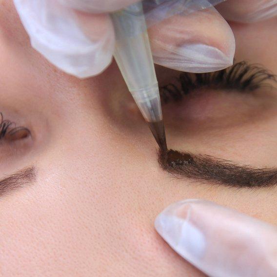 dermopigmentation montpellier